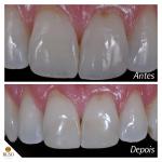 buso-dentista-facetas-resina
